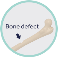 Bone defect